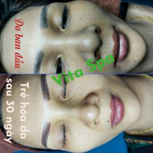 Liệu trình trẻ hóa da trị nám cho chị Hà tại Vita Spa